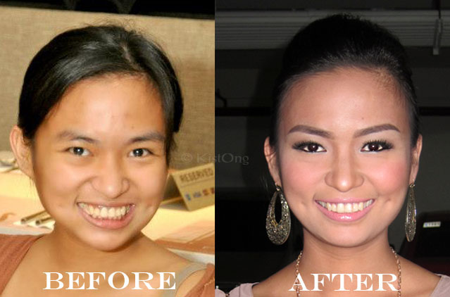 0before-after-rosemay