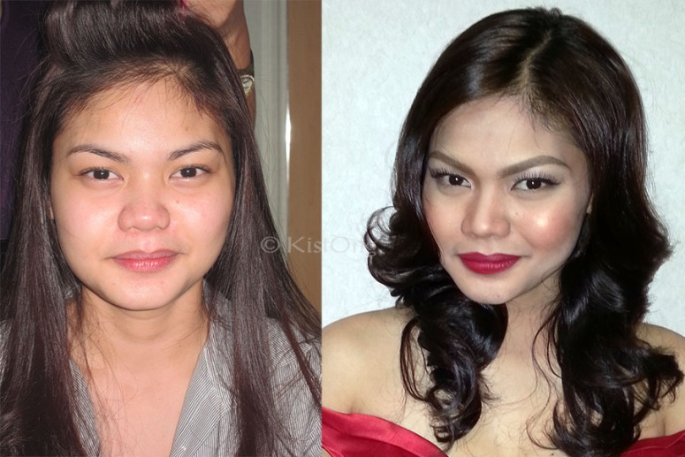2chin-before-and-after