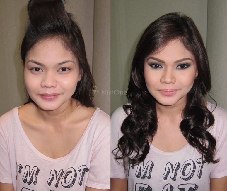 7chin-before-after