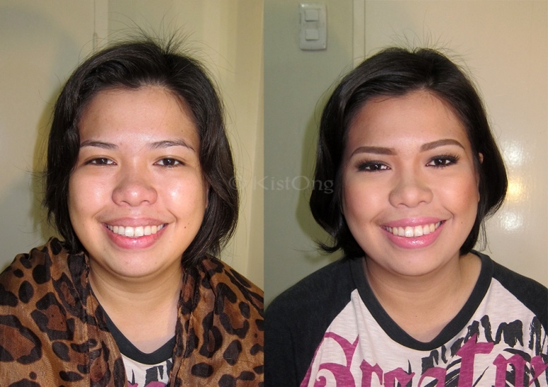 1moi-before-after