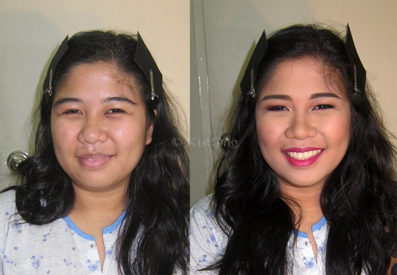 2before-after