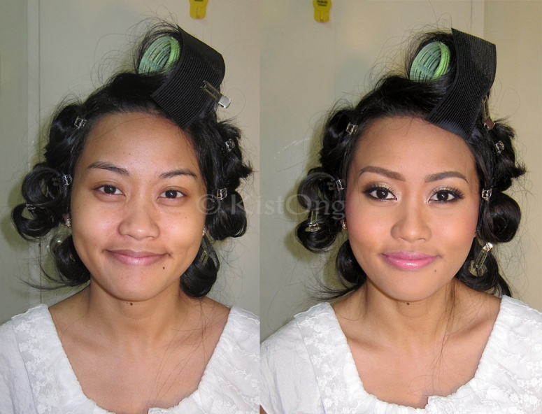 3rara-before-after