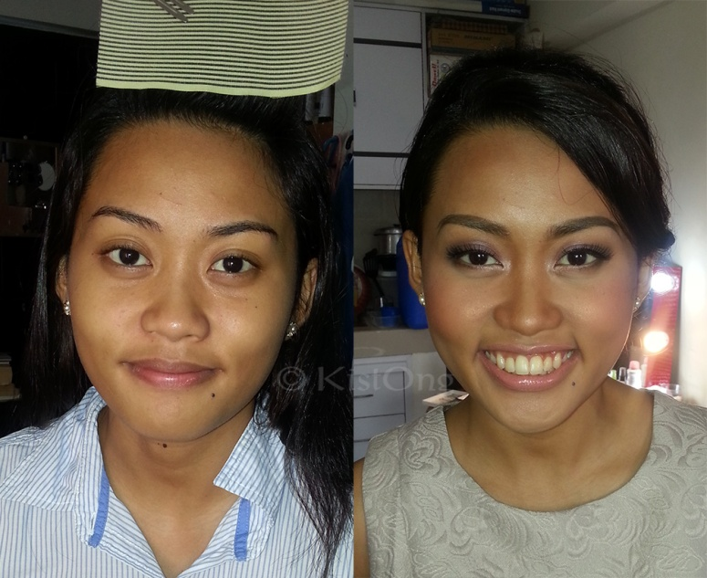 rara-before-after